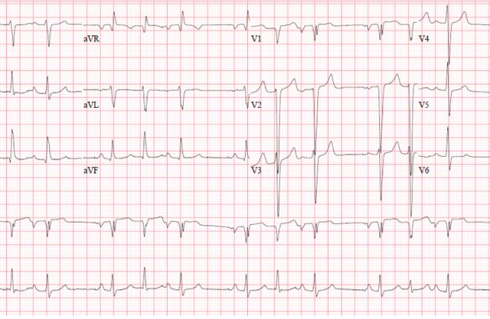 Arritmia en paciente con Cardiopatia Congénita