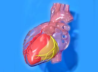 Guías acc/aha 2014 de sindrome coronario agudo sin supradesnivel del segmento st