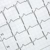 Actualización online en Electrocardiografía