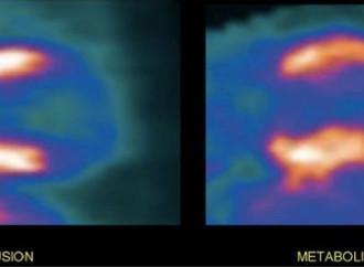 Cuantificación de la reserva de flujo coronario