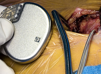 Sub-indicación de desfibriladores en prevención primaria de muerte súbita