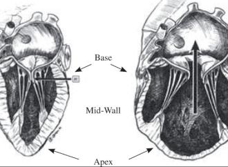 Tratamiento quirúrgico en pacientes con insuficiencia mitral moderada de etiología isquémica