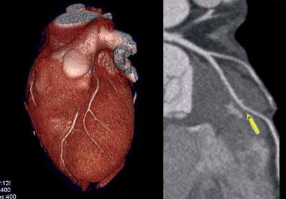 CTA para identificar placas ateroscleróticas que causan isquemia