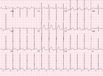 Taquicardia supraventricular en recién nacidos