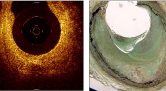 Efecto de la terapia con Atorvastatina sobre el espesor de la capa Fibrosa de la placa ateromatosa coronaria