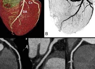 Eventos sobre el test funcional vs. anatómico para enfermedad coronaria