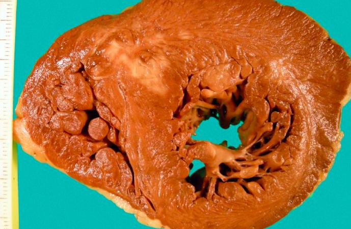 Nuevas perspectivas en la prevalencia de miocardiopatía hipertrófica