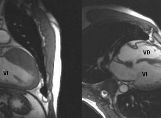 Diagnóstico de Miocardiopatía hipertrófica por Resonancia Magnética cardíaca