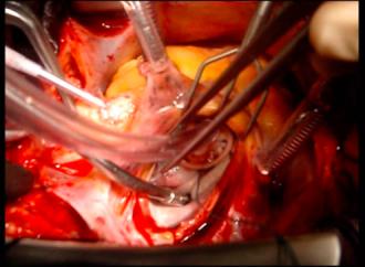 Plástica versus reemplazo valvular en el tratamiento de la insuficiencia mitral isquémica