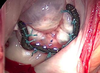 Epidemiología y fisiopatología del prolapso de válvula mitral