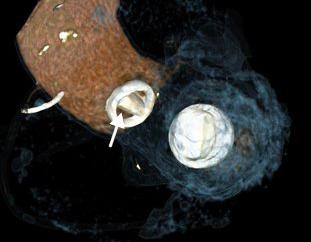 Uso de la Tomografía Computada en obstrucción de válvulas protésicas