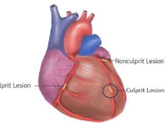 Angioplastia multivaso en uno vs varios procedimientos en Infarto de Miocardio sin elevación del ST