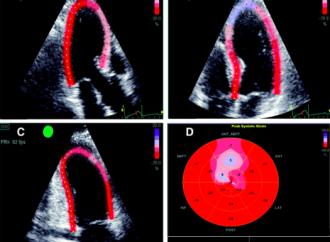Predicción de mortalidad total y admisiones por IC a través de strain longitudinal global de Vi en pacientes con infarto agudo de miocardio y fracción de eyección preservada