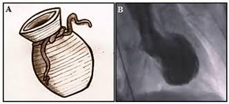 Resultado de imagen de sindrome de takotsubo