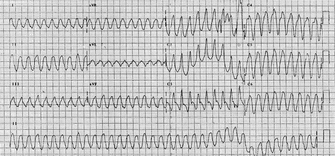 Incremento en la Incidencia de Arritmia Ventricular de pacientes con Cáncer avanzado y cardiodesfibrilador implantable