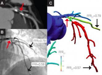 Cuantificación de placa coronaria y reserva fraccional de flujo por tomografía computada coronaria indentifica lesiones causantes de isquemia