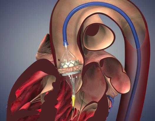 PARTNER-2: Reemplazo valvular aórtico percutáneo vs quirúrgico en pacientes de riesgo intermedio