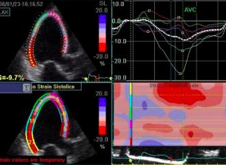 Evaluación de la función sistólica en la insuficiencia mitral secundaria: Fracción de eyección vs Strain longitudinal global por speckle tracking