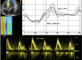 Strain Rate diastólico temprano en relación con la función sistólica y diastólica y el pronóstico en estenosis aórtica
