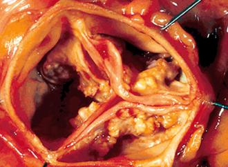 Estimación de la presión arterial óptima en la Estenosis Aórtica asintomática