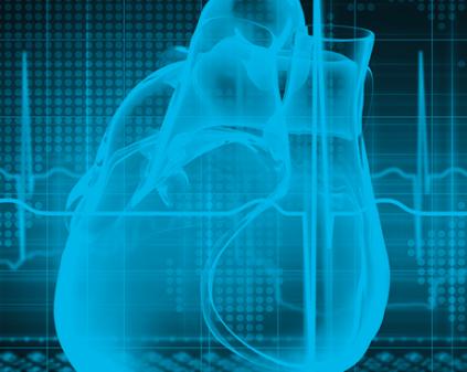 Nuevas guías 2016 ESC para el manejo de pacientes con Fibrilación Auricular