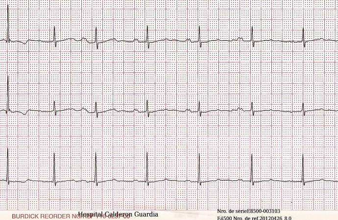 Consejo electrofisiologia – Electrocardiograma desafiante