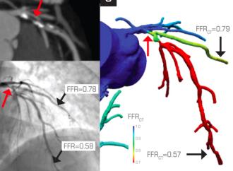 1 año de seguimiento de FFR-CT en pacientes con sospecha de enfermedad coronaria