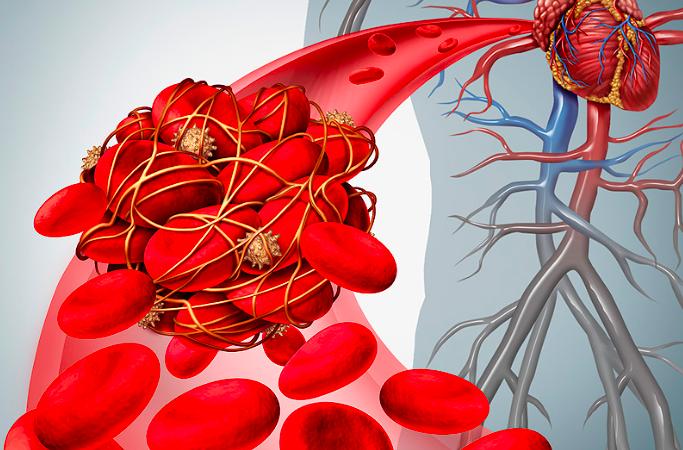 Prevención de sangrado en pacientes con FA sometidos a angioplastia coronaria