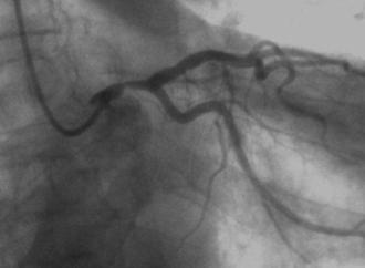 Stents liberadores de everolimus o cirugía de revascularización miocárdica en enfermedad de tronco de coronaria izquierda