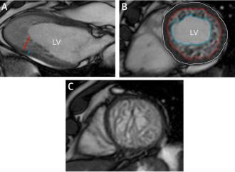 Pronóstico a largo plazo de la Resonancia Magnética en Miocardio no Compacto