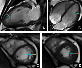 Miocardio no compactado ¿Fenotipo anatómico o miocardiopatía primaria?