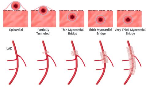 Puente muscular de la Arteria Descendente Anterior