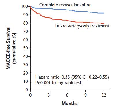 Angioplastia multivaso en Infarto de Miocardio guiado por Reserva Fraccional de Flujo