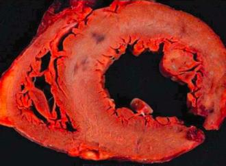 Complicaciones mecánicas en el Infarto Agudo de Miocardio
