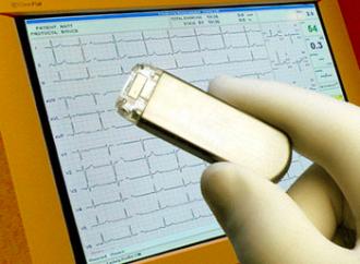 Detección de fibrilación auricular silente y su interpretación ¿El nuevo reto?