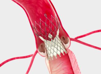 Reemplazo valvular aórtico quirúrgico vs percutáneo en pacientes de riesgo intermedio