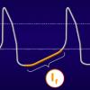 IVABRADINA: Nueva terapéutica en la insuficiencia cardiaca