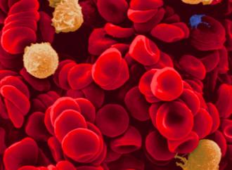Manejo del tratamiento antitrobótico tras un evento de sangrado en pacientes con enfermedad coronaria y/o fibrilación auricular