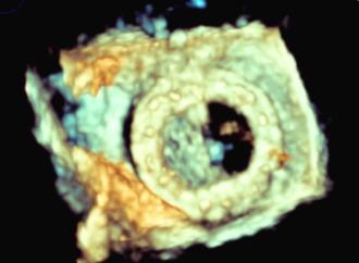 Disfunción trombótica de prótesis mitral mecánica sin evidencia de trombo en pruebas de imagenes