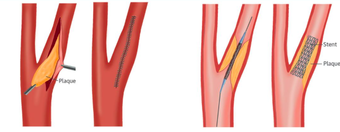 Stent Carotídeo vs Endarterectomía en la prevención del Stroke