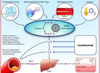 Terapia antiinflamatoria en Aterosclerosis Coronaria con Canakinumab