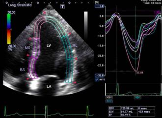 Cambios agudos de la funcion ventricular izquierda detectados con el estudio de la deformacion miocardica, luego del consumo excesivo de alcohol