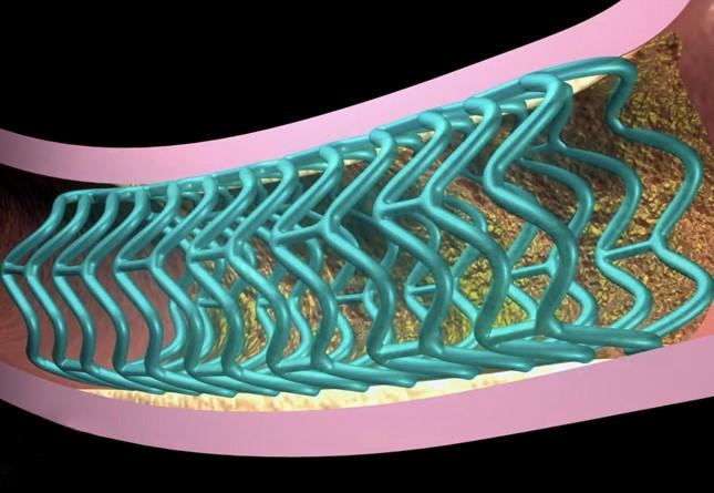 Resultados de 2 años del Stent Bioabsorbible Absorb para el Tratamiento de la Enfermedad Arterial Coronaria: Revisión Sistemática y Metaanálisis
