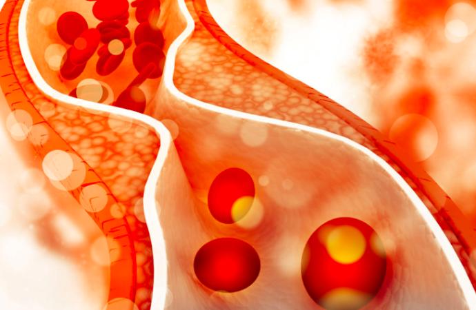 Papel del anacetrapib en la era de las estatinas