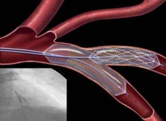 Angioplastias complejas y antiagregación