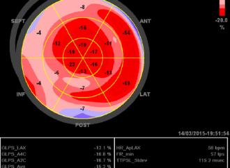 "Diferentes Patrones del ""Bull´s Eye"" en Strain longitudinal de pacientes con miocardiopatía e hipertrofia ventricular izquierda concéntrica"