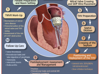 Reemplazo Valvular mitral transeptal transcatéter usando Válvulas cardíacas expandibles con balón