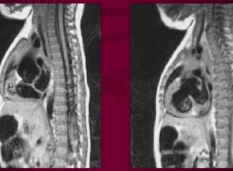 Resonancia Magnética Nuclear Cardiaca en la Tetralogía de Fallot