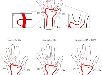 Análisis anatómico y funcional de la vasculatura palmar y su relación con eventos post cateterismo transradial