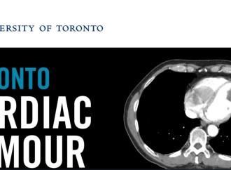 Toronto Cardiac Tumour Conference